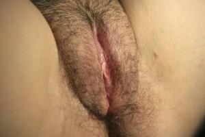 Majora Plasty  Side 1 After